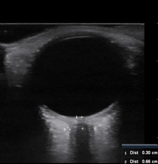 Enlarge ONSD Ultrasound