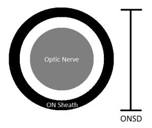 ONSD Diagram
